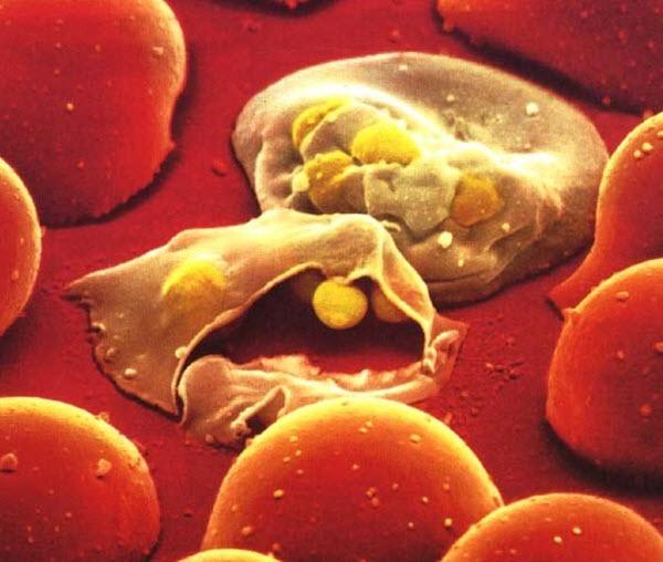 паразиты в клетке человека